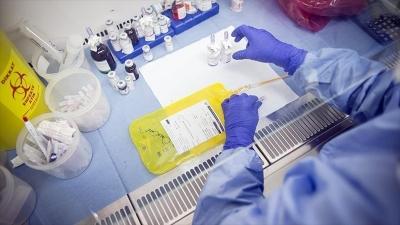 'Patologlar kanser tanı ve tedavisinde önemli rol oynuyor'